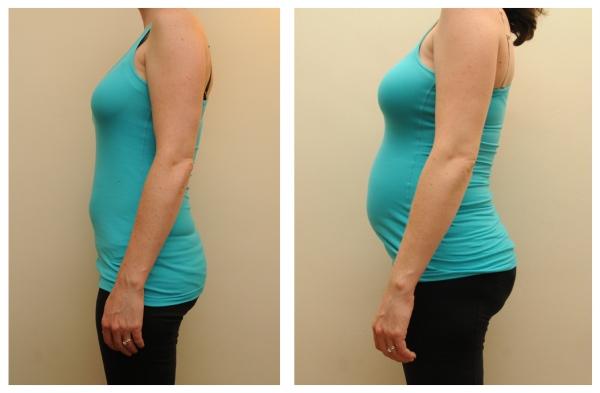 9 vs 19 weeks twin pregnancy photo